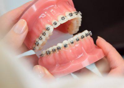 Modell festsitzende Zahnspange Metall Kieferorthopädie Köln
