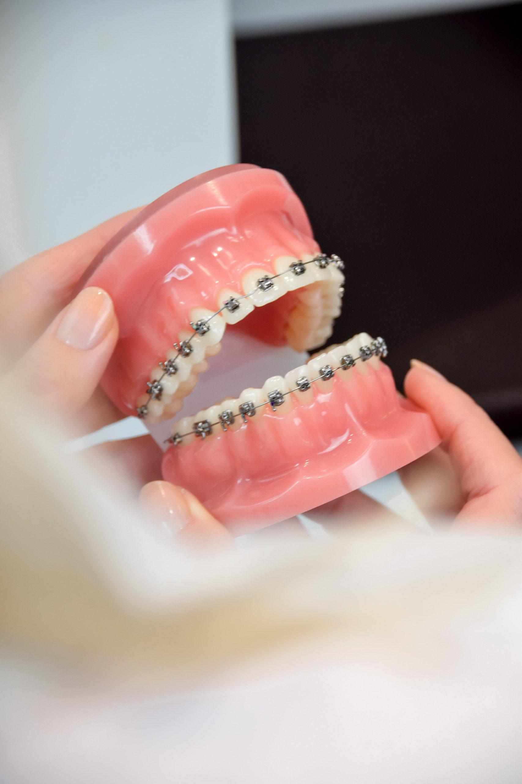 Anschauungsmodell für festsitzende Zahnspangen