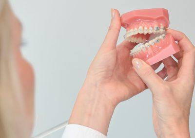 Unsichtbare Kieferorthopädie mit festsitzenden Zahnspangen Keramik Kieferorthopädie Köln